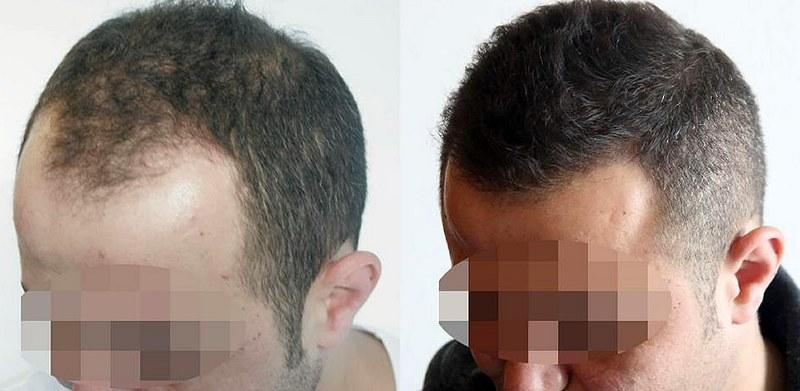 Costi di un trapianto di capelli: come fare per ...